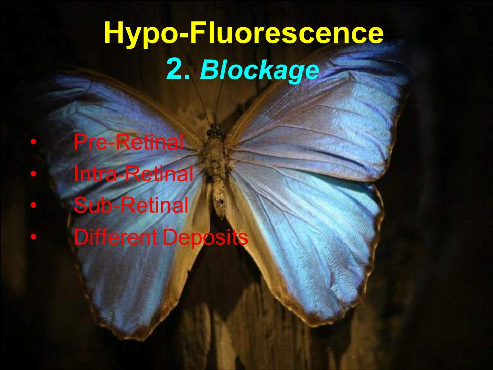 Hypo-Fluorescence 2. Blockage Pre-Retinal Intra-Retinal Sub-Retinal Different Deposits
