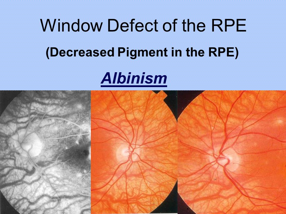 Window Defect of the RPE (Decreased Pigment in the RPE) Albinism