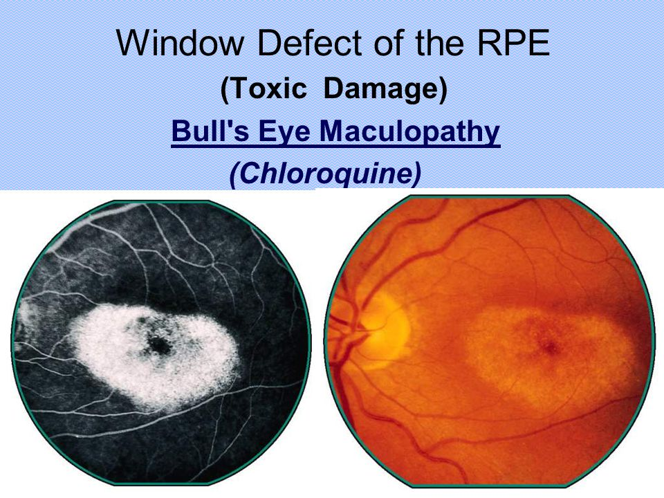 Window Defect of the RPE (Toxic Damage) Bull's Eye Maculopathy (Chloroquine)