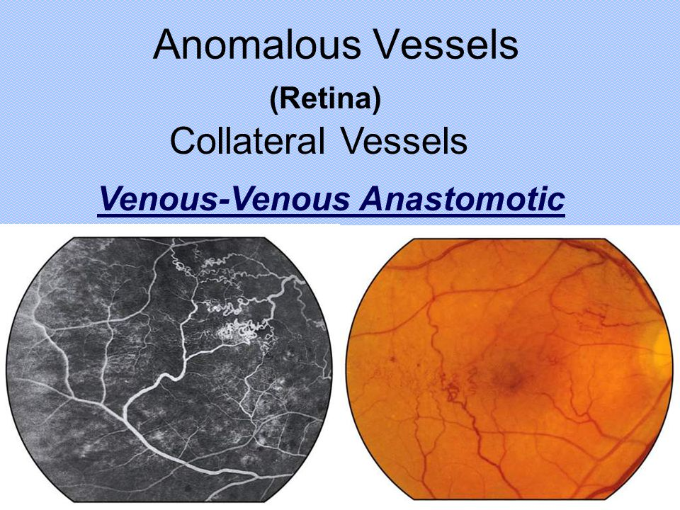 Anomalous Vessels Collateral Vessels Venous-Venous Anastomotic (Retina)
