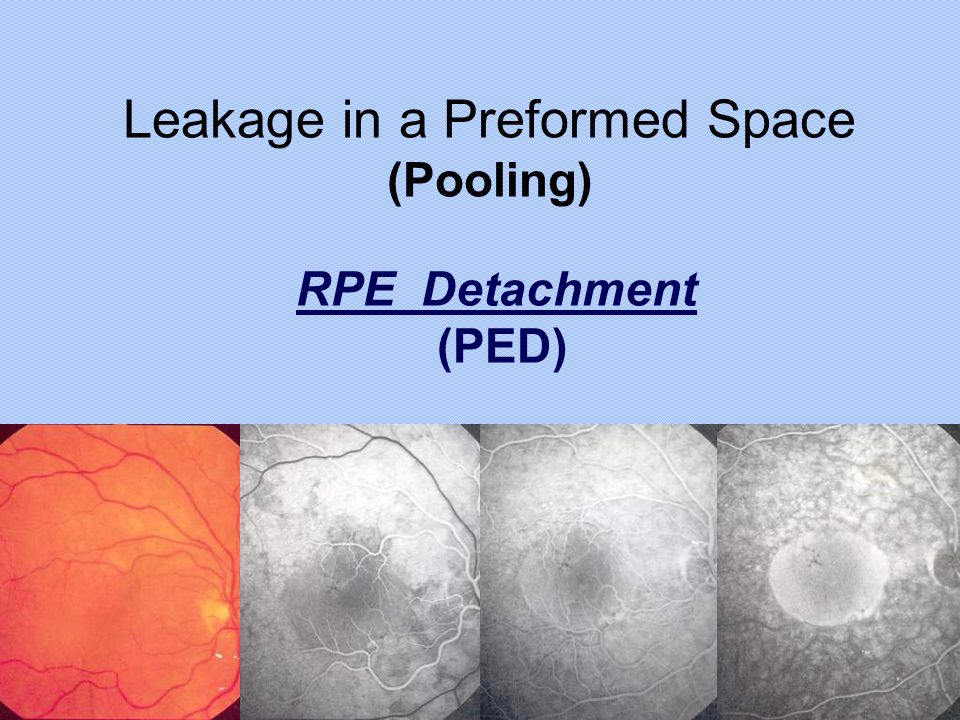 RPE Detachment (PED) Leakage in a Preformed Space (Pooling)