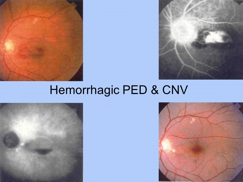 Hemorrhagic PED & CNV