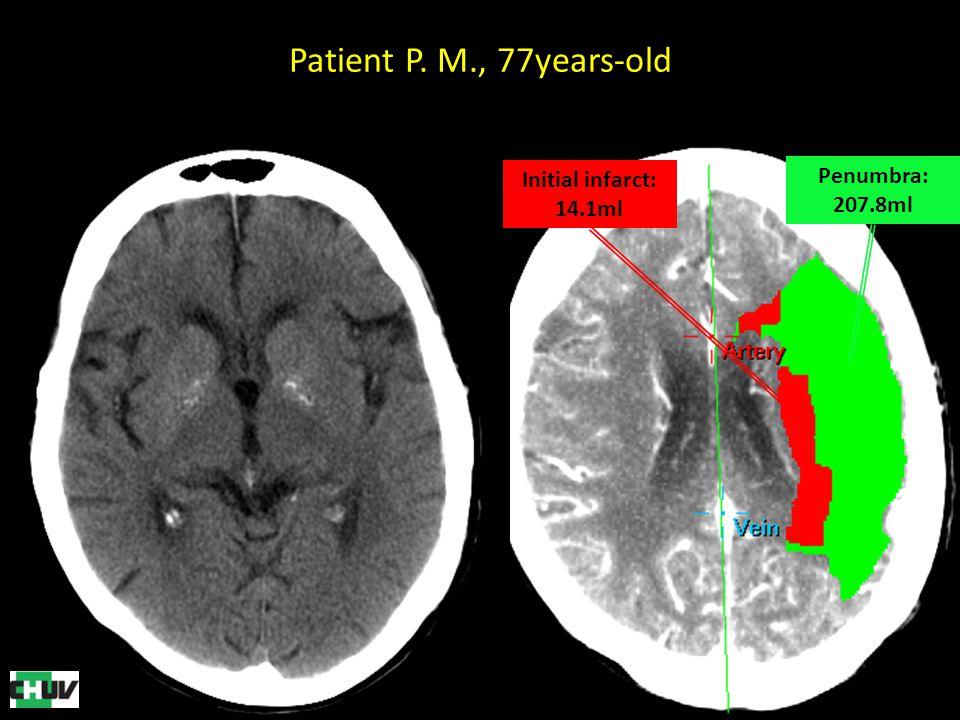 Patient P. M., 77years-old Penumbra: 207.8ml Initial infarct: 14.1ml