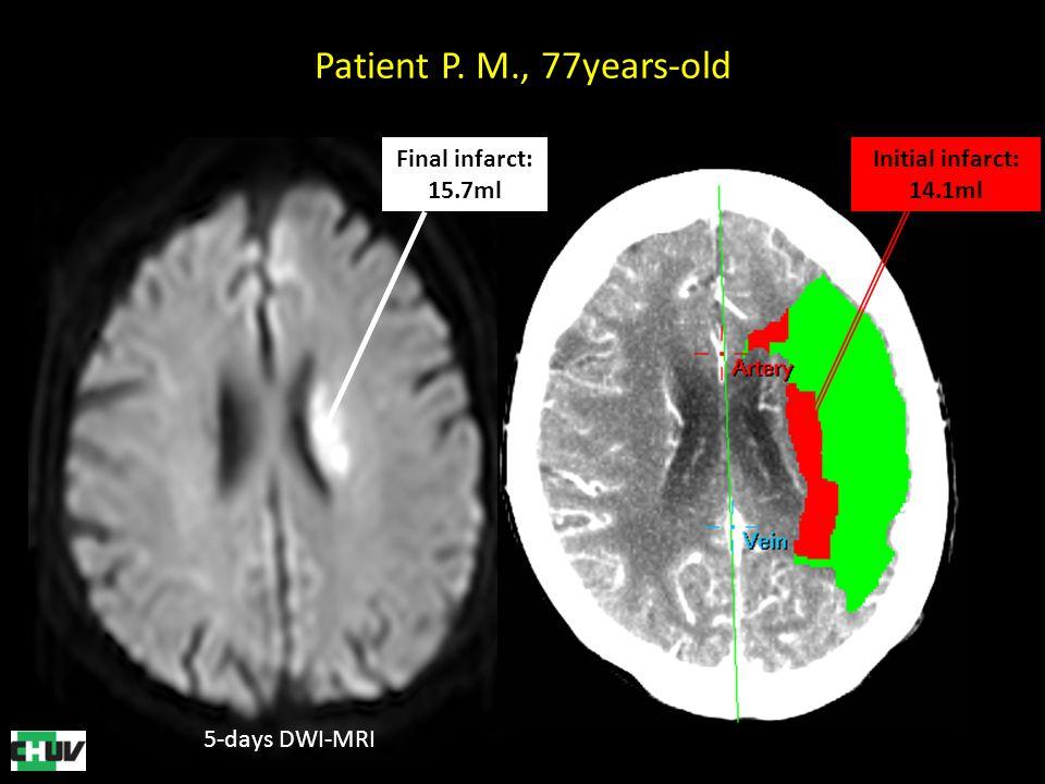 5-days DWI-MRI Final infarct: 15.7ml Initial infarct: 14.1ml