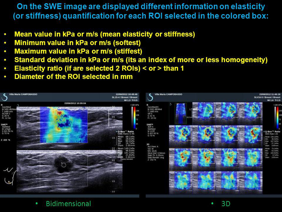 Bidimensional 3D On the SWE image are displayed different information on elasticity (or stiffness) quantification for each ROI selected in the colored