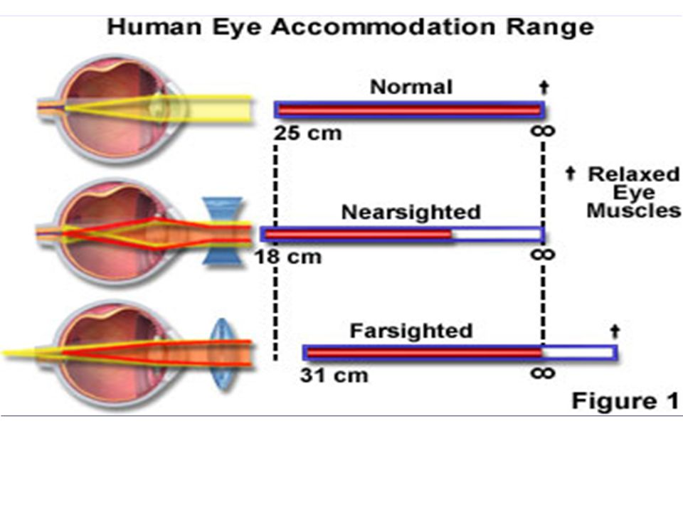 Hyperopia (Long-Sighted) Image is formed behind the retina. Correct with a converging lens