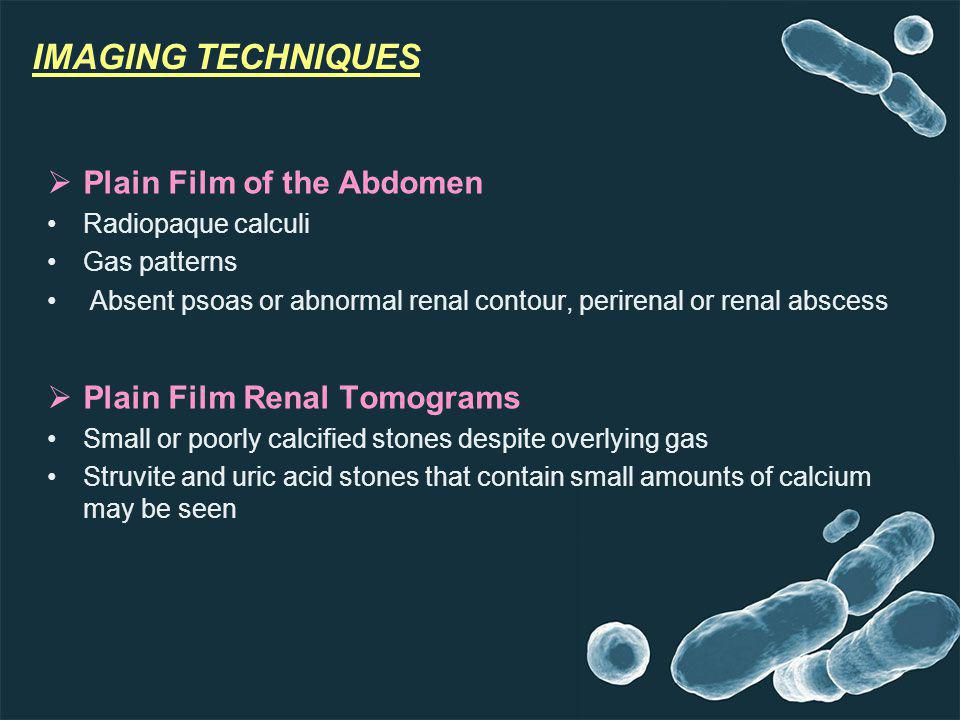 IMAGING TECHNIQUES Plain Film of the Abdomen Radiopaque calculi Gas patterns Absent psoas or abnormal renal contour, perirenal or renal abscess Plain