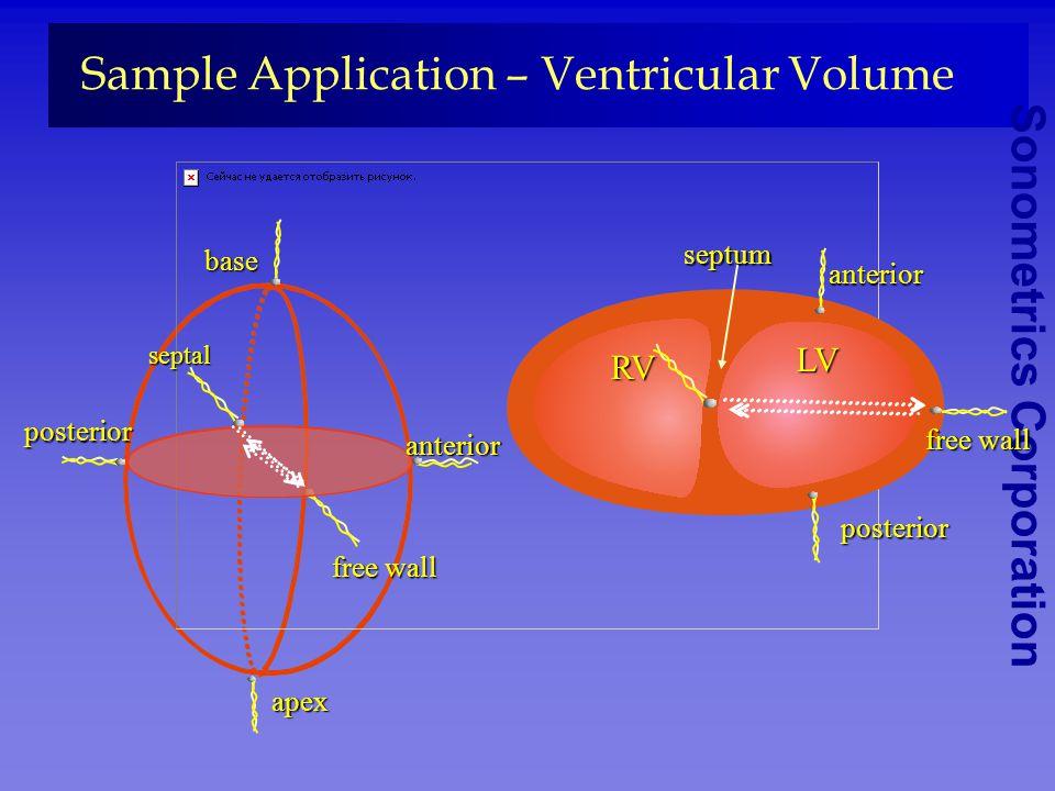 Sonometrics Corporation Sample Application – Ventricular Volume Left ventricle Left ventricle apex segment shortening base posterior anterior wall thi