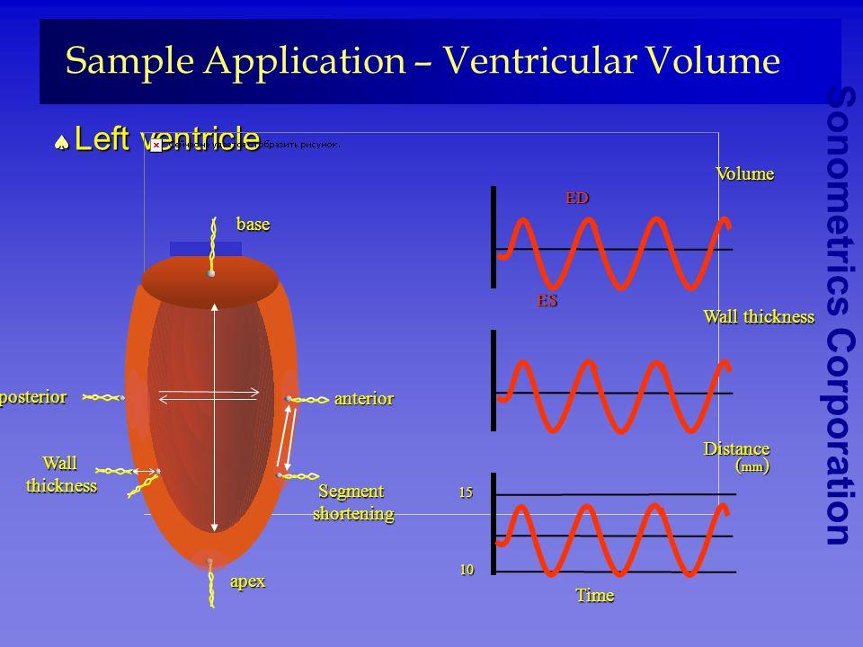 Sonometrics Corporation Sample Application – Ventricular Volumeseptal free wall base posterior apex anteriorseptum posterior anterior RV LV