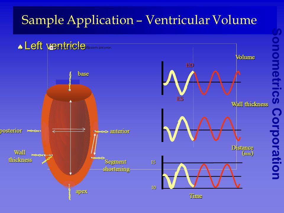 Sonometrics Corporation Sample Application – Ventricular Volume Left ventricle Left ventricle apex segment shortening shortening posterior anterior wa