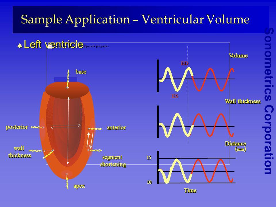 Sonometrics Corporation Sample Application – Ventricular Volume Left ventricle Left ventricle apex Segment shortening shorteningposterior anterior Wal
