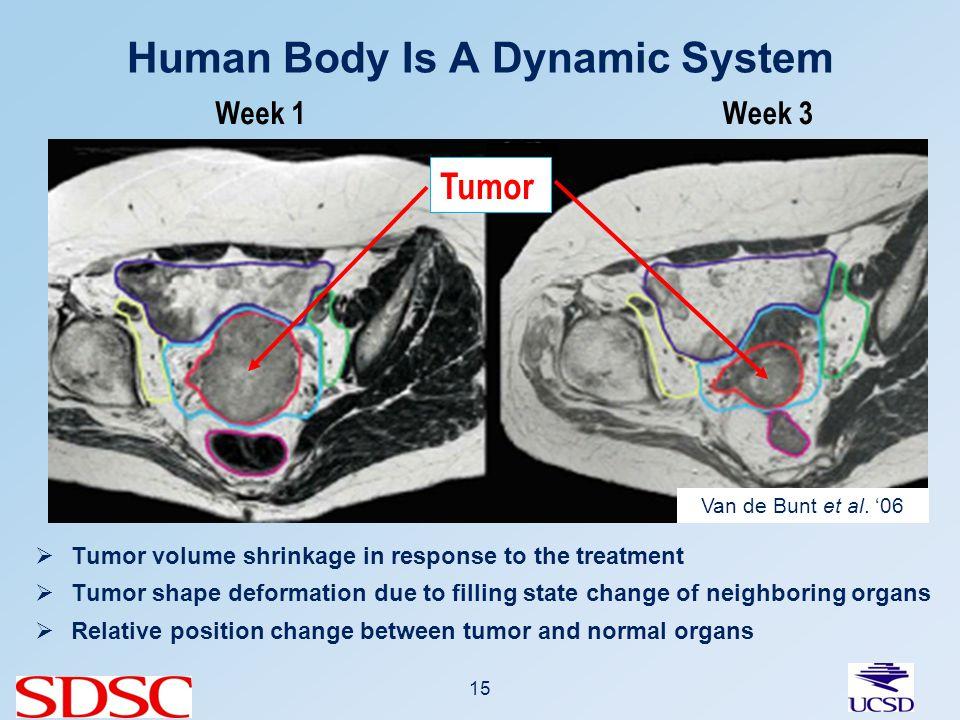 15 Human Body Is A Dynamic System Week 1 Tumor Week 3 Van de Bunt et al.