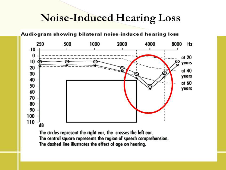 Noise-Induced Hearing Loss