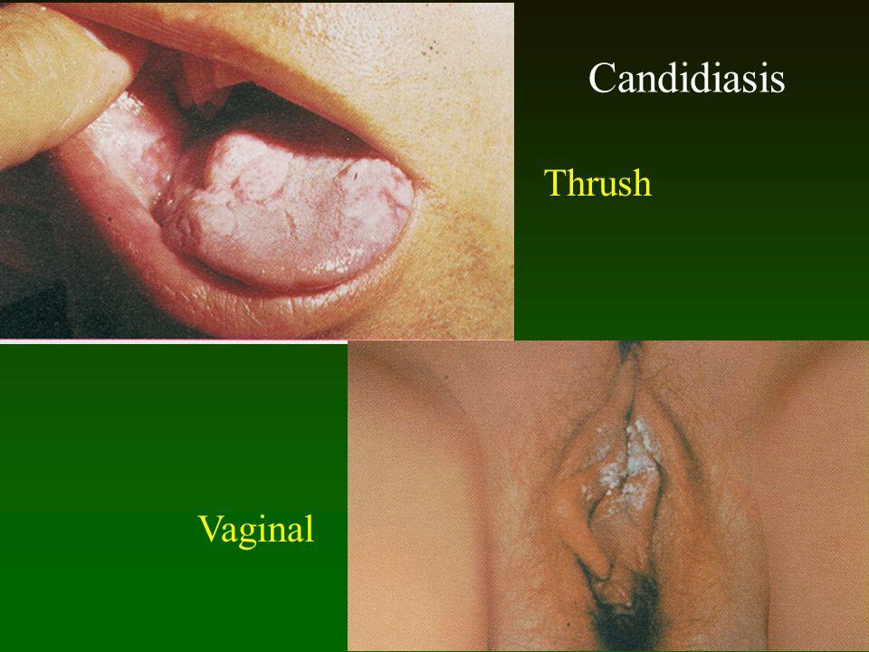 Candidiasis Thrush Vaginal