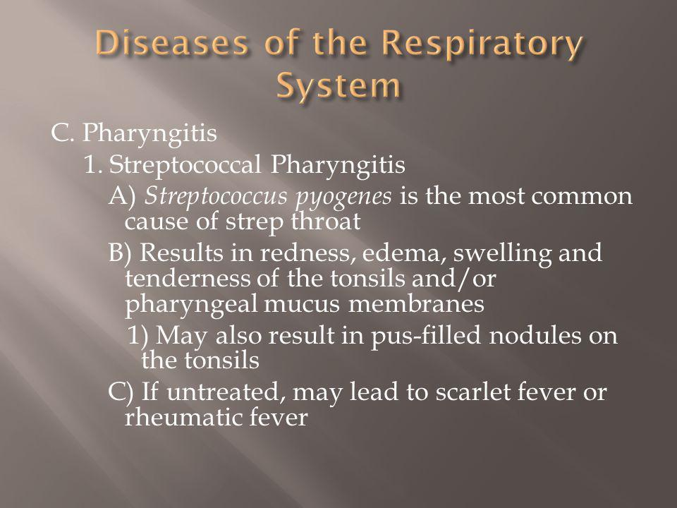 C. Pharyngitis 1. Streptococcal Pharyngitis A) Streptococcus pyogenes is the most common cause of strep throat B) Results in redness, edema, swelling