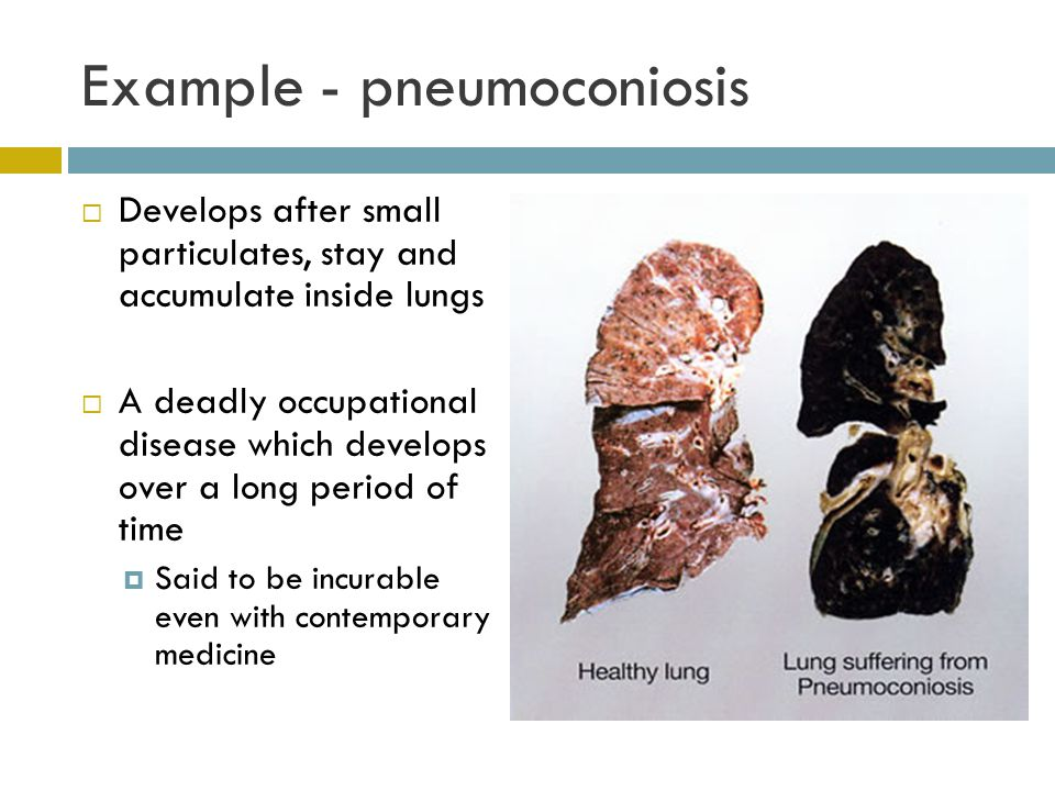 Example - pneumoconiosis Develops after small particulates, stay and accumulate inside lungs A deadly occupational disease which develops over a long