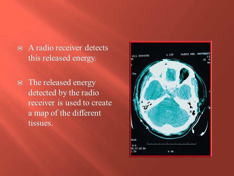 The electromagnetic waves with the shortest wavelengths and highest frequencies are X rays and gamma rays.