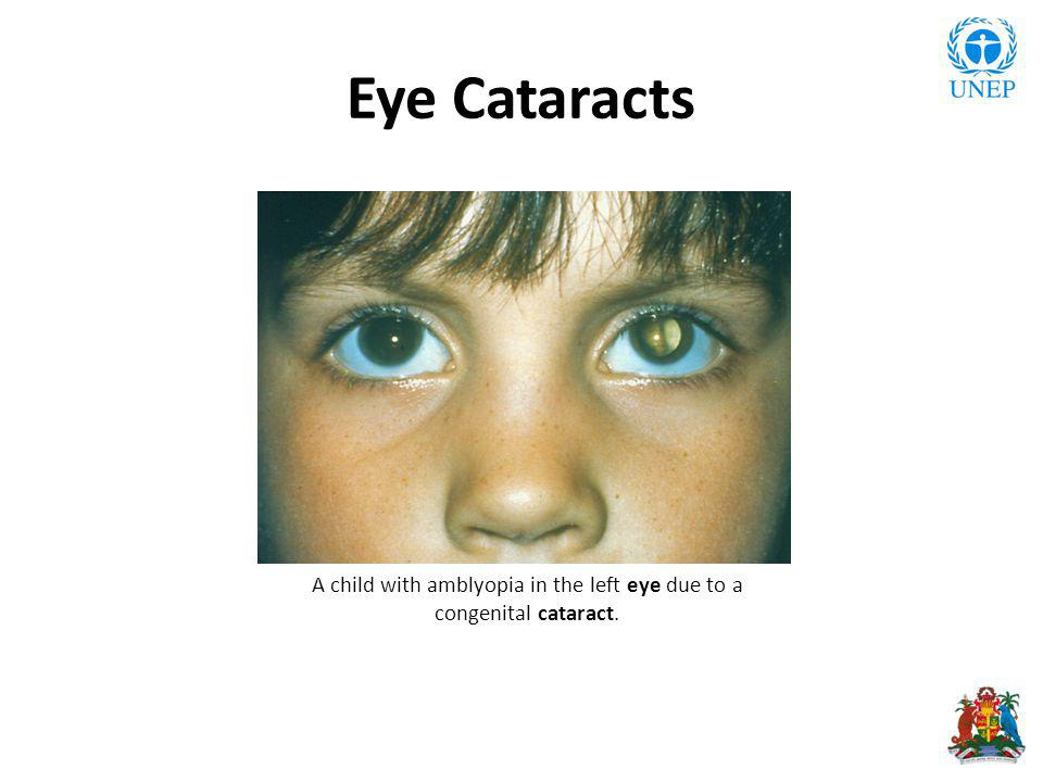 Eye Cataracts A child with amblyopia in the left eye due to a congenital cataract.
