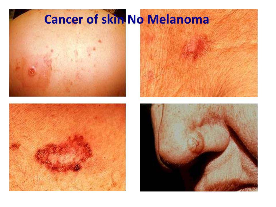 Cancer of skin No Melanoma