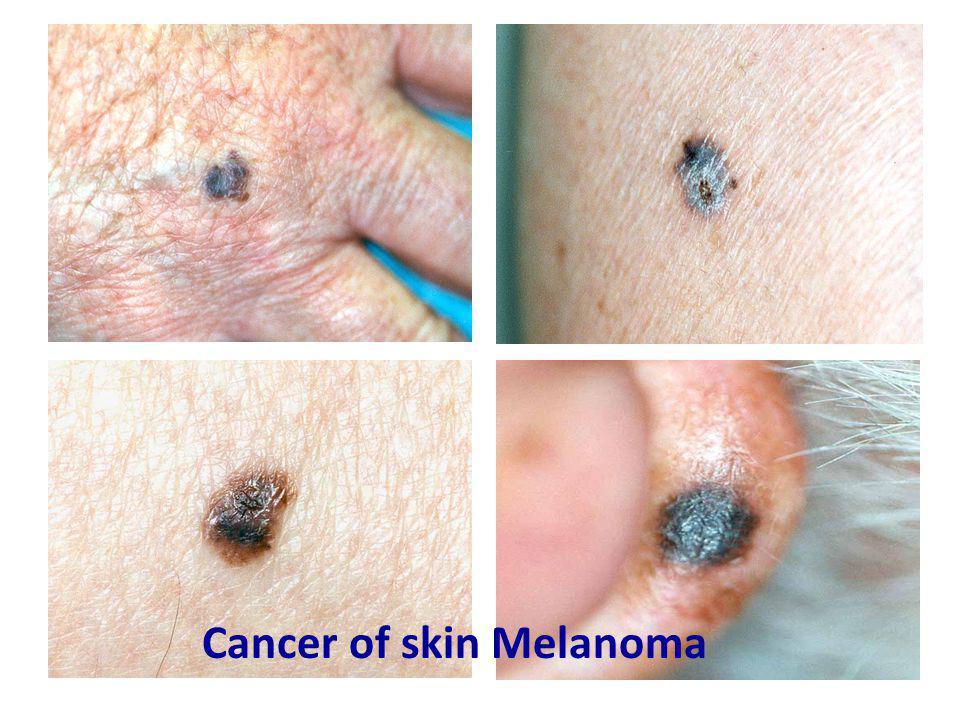 Cancer of skin Melanoma