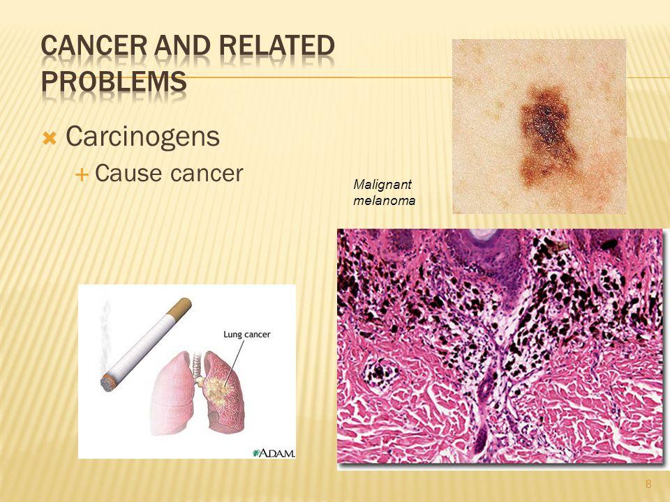 Carcinogens Cause cancer Malignant melanoma 8