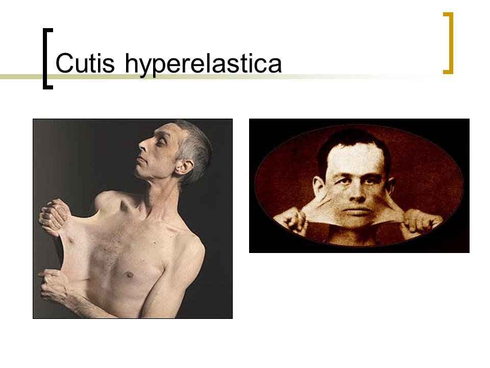 Cutis hyperelastica