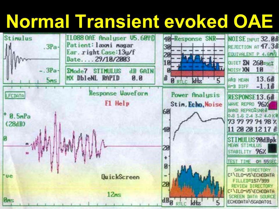 Normal Transient evoked OAE