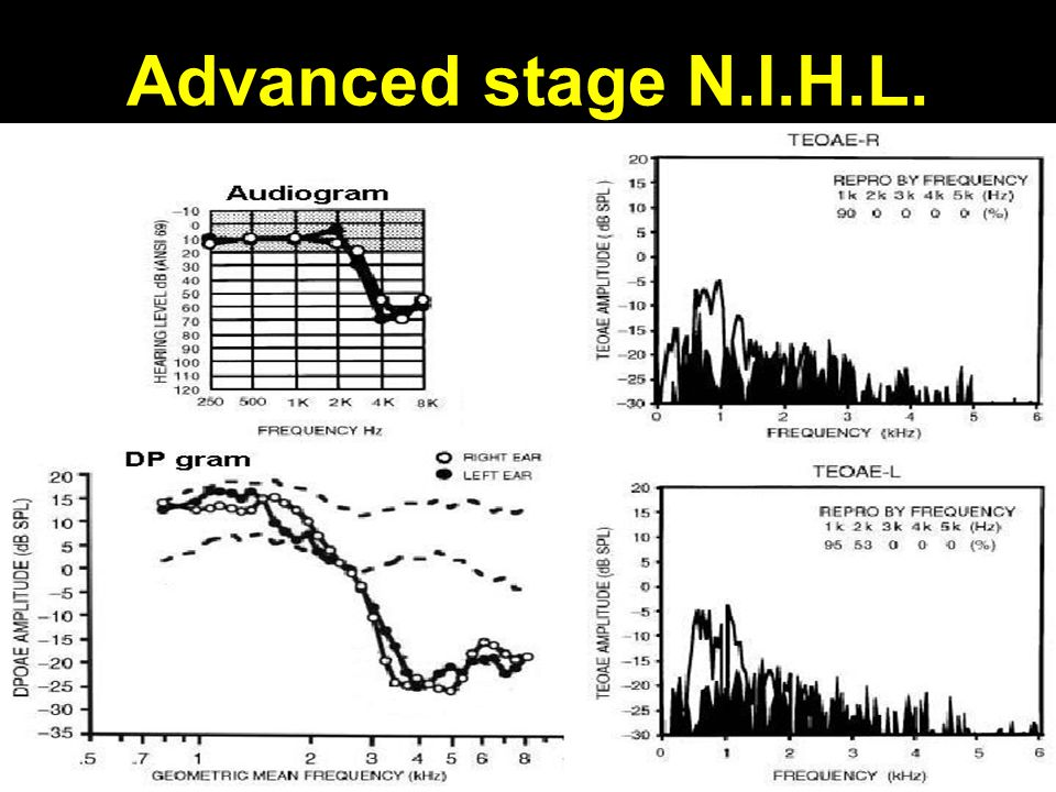 Advanced stage N.I.H.L.