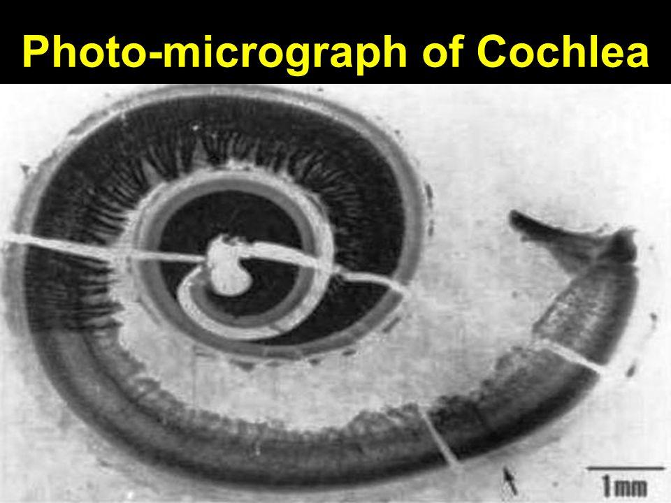Photo-micrograph of Cochlea