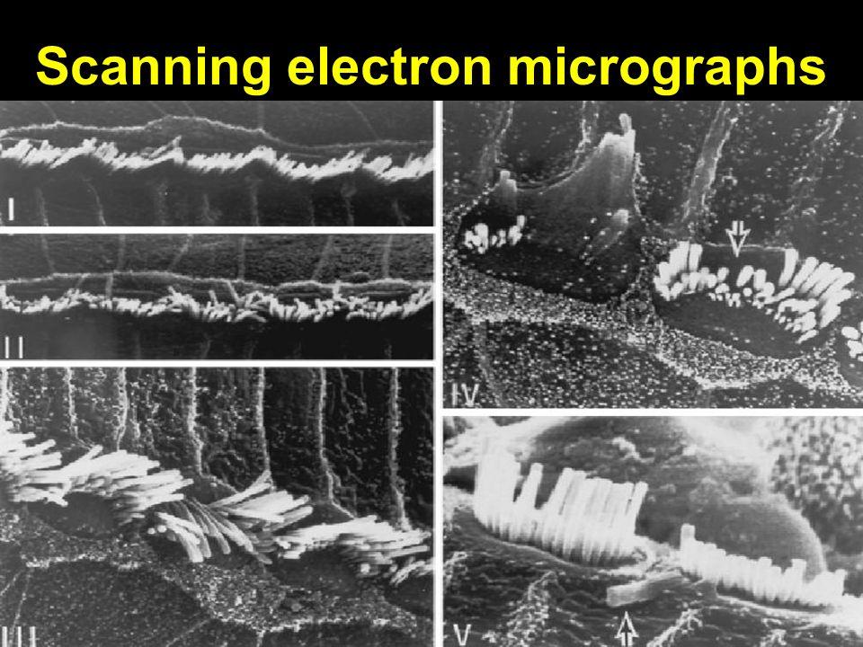 Scanning electron micrographs