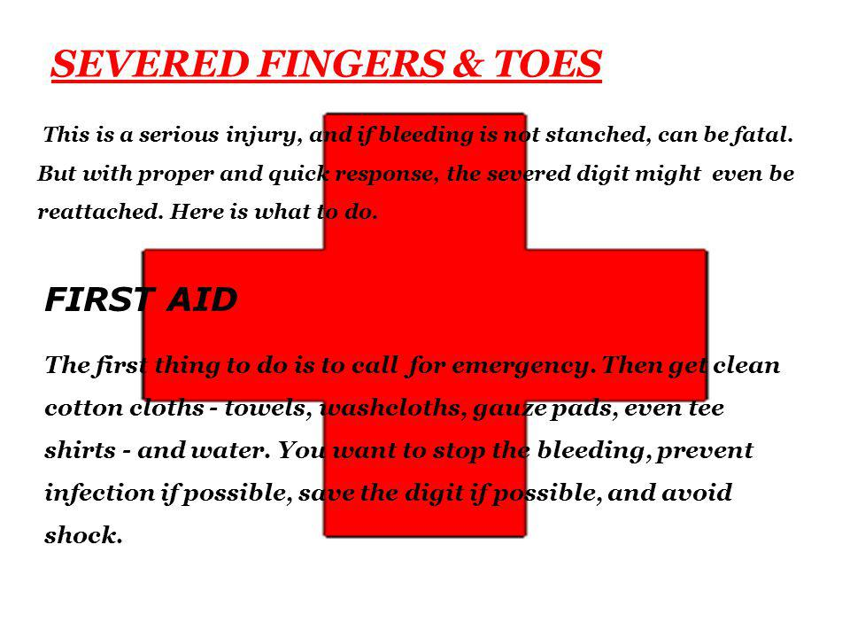 SEVERED FINGERS & TOES This is a serious injury, and if bleeding is not stanched, can be fatal.