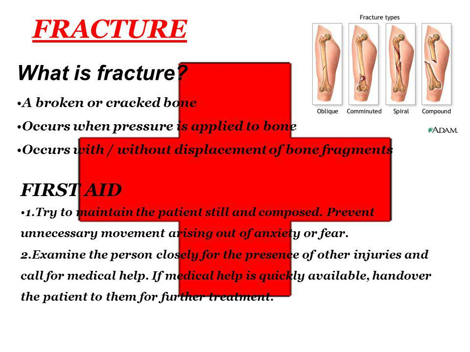 FRACTURE What is fracture.