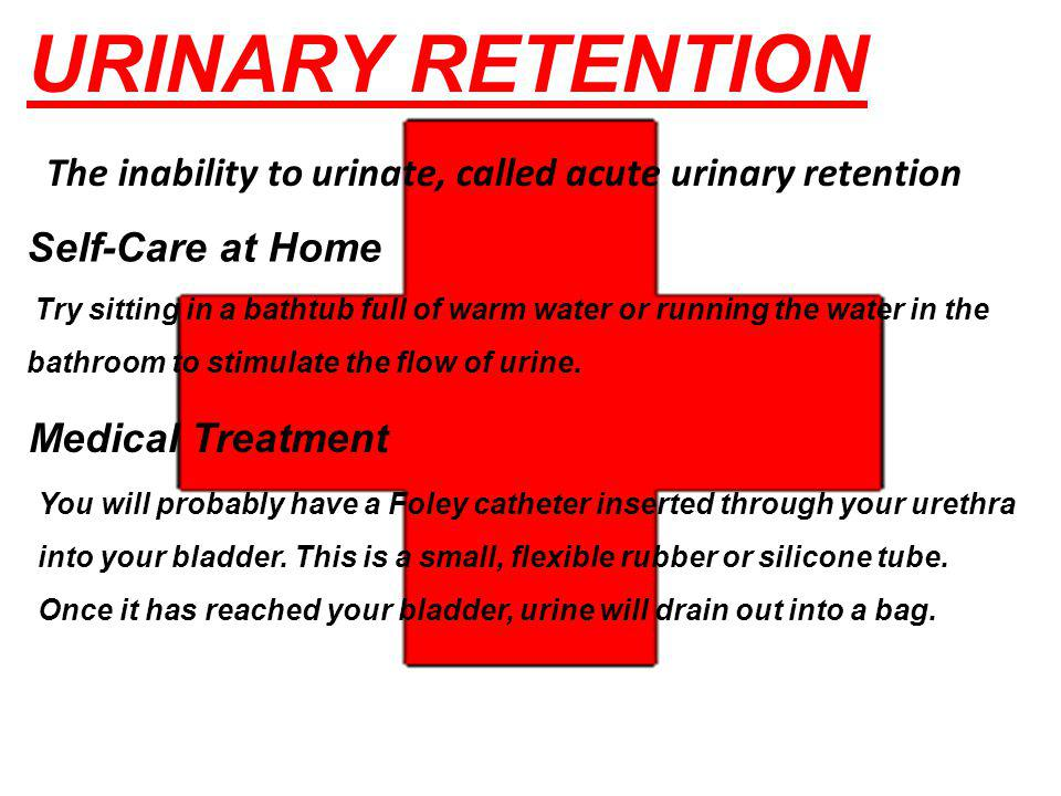 URINARY RETENTION The inability to urinate, called acute urinary retention Self-Care at Home Try sitting in a bathtub full of warm water or running the water in the bathroom to stimulate the flow of urine.