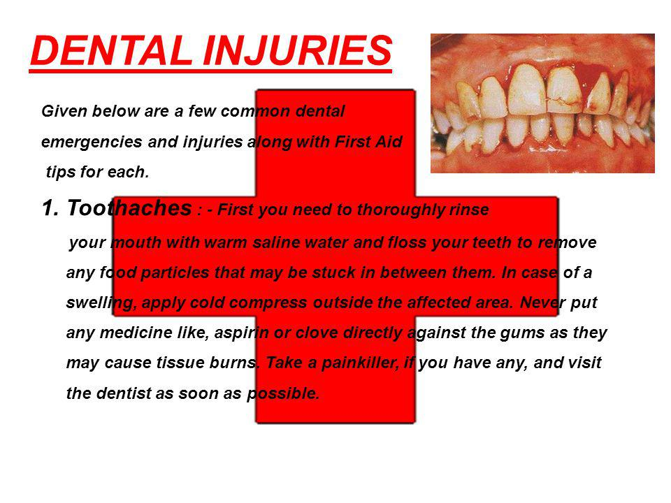 DENTAL INJURIES Given below are a few common dental emergencies and injuries along with First Aid tips for each.