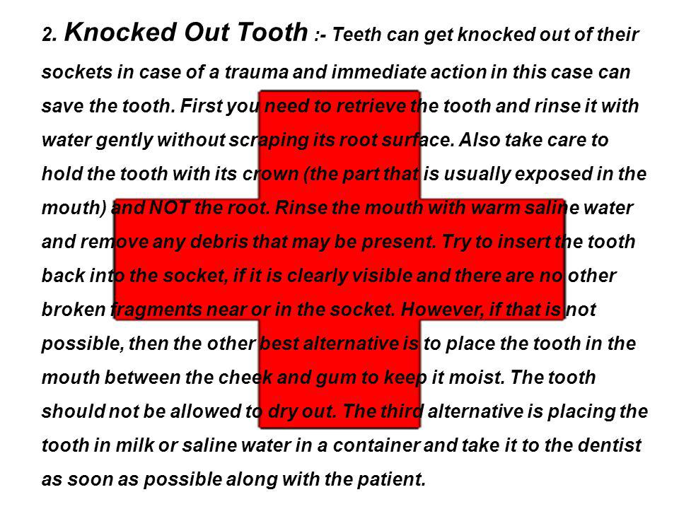 2. Knocked Out Tooth :- Teeth can get knocked out of their sockets in case of a trauma and immediate action in this case can save the tooth. First you