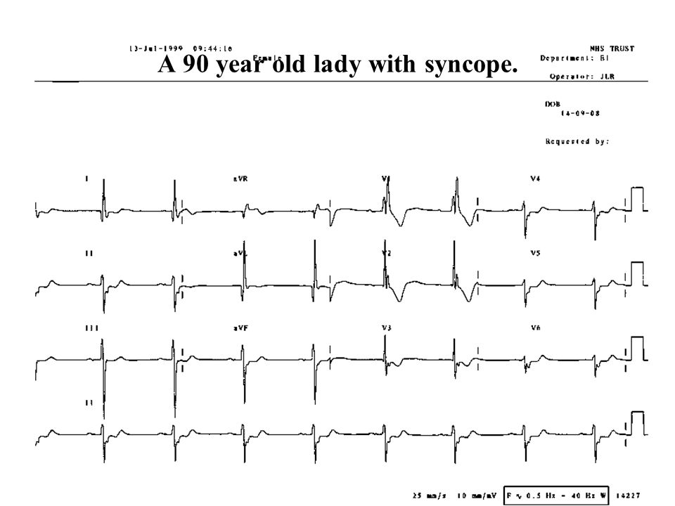 A 90 year old lady with syncope.