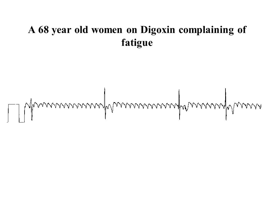 A 68 year old women on Digoxin complaining of fatigue
