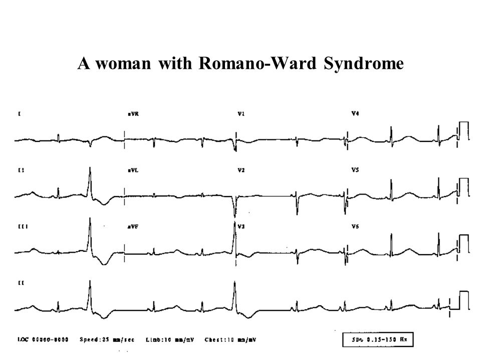 A woman with Romano-Ward Syndrome