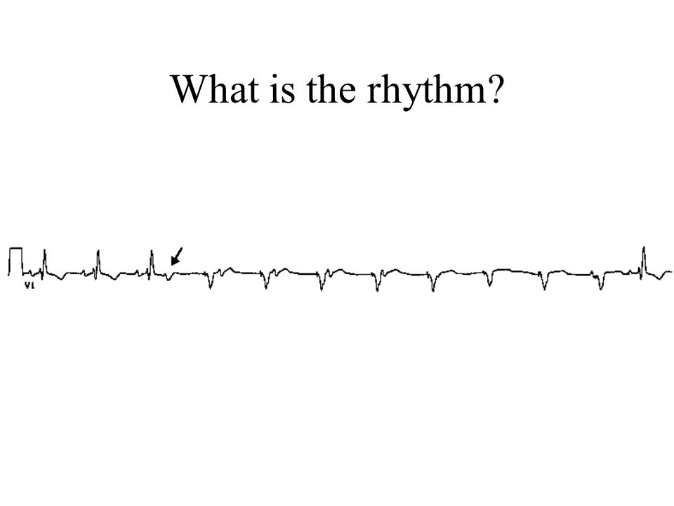 What is the rhythm?