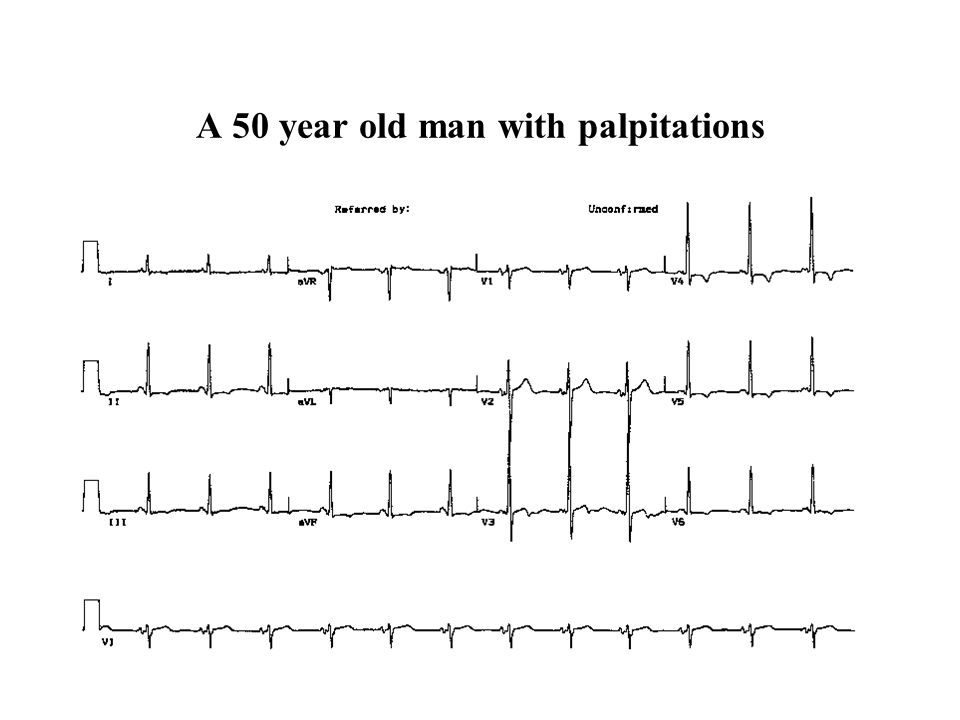 A 50 year old man with palpitations