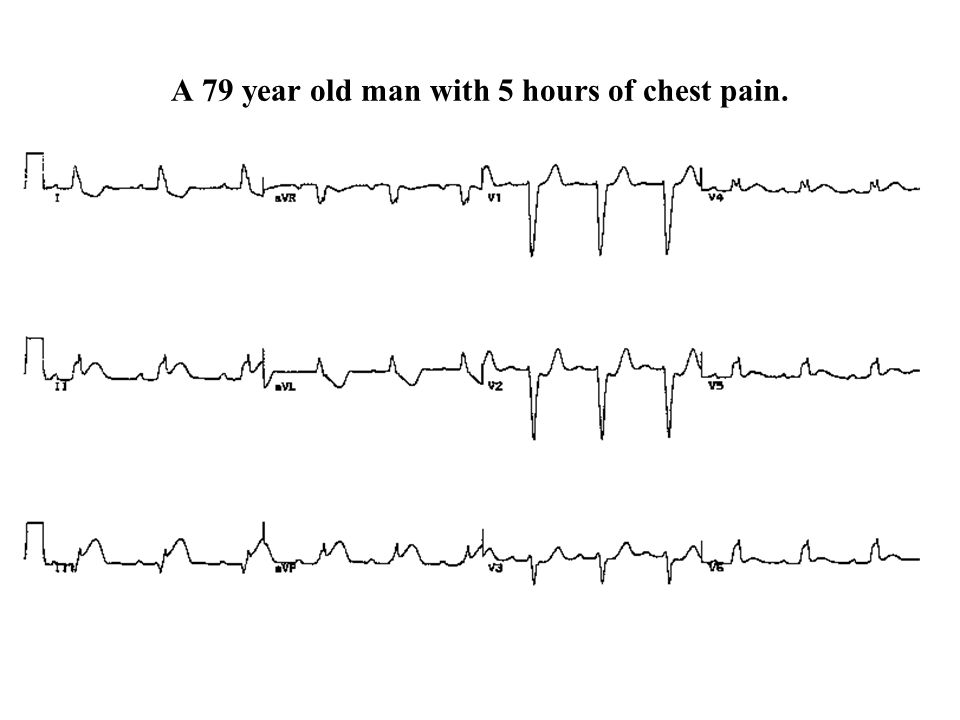 A 79 year old man with 5 hours of chest pain.