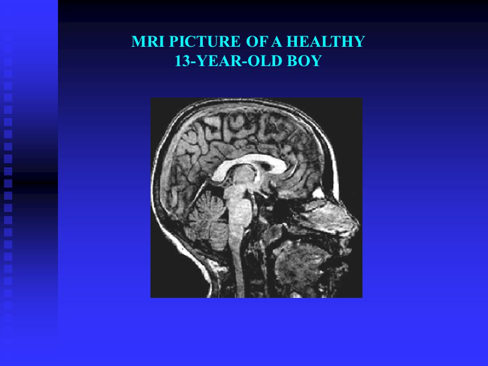 MRI PICTURE OF A HEALTHY 13-YEAR-OLD BOY