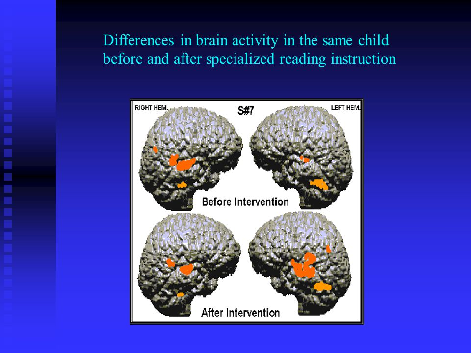 Differences in brain activity in the same child before and after specialized reading instruction