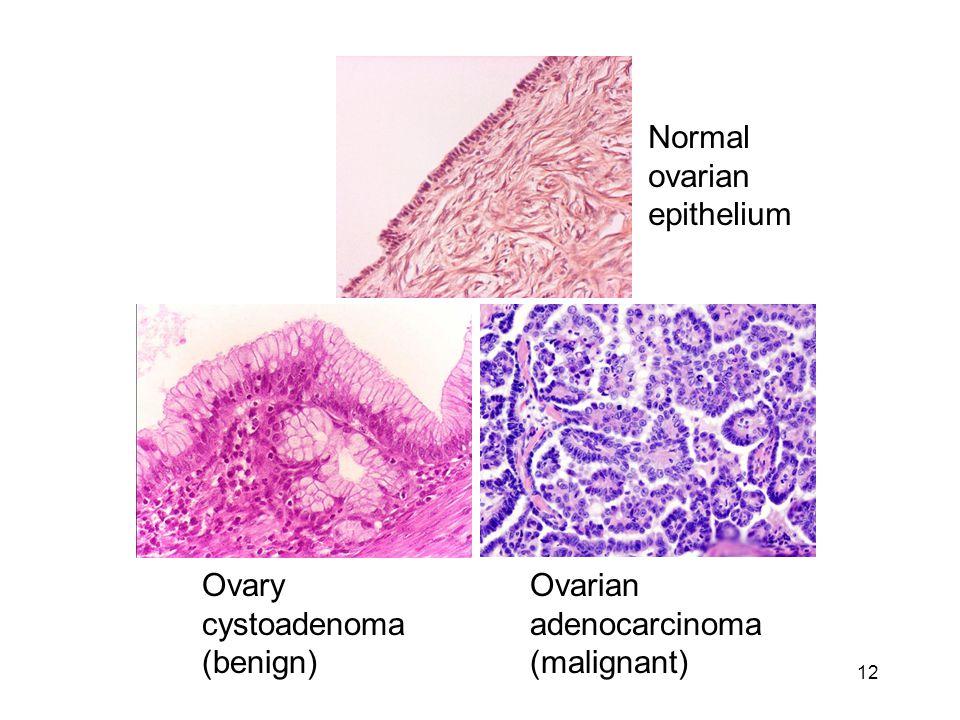 12 Ovarian adenocarcinoma (malignant) Ovary cystoadenoma (benign) Normal ovarian epithelium