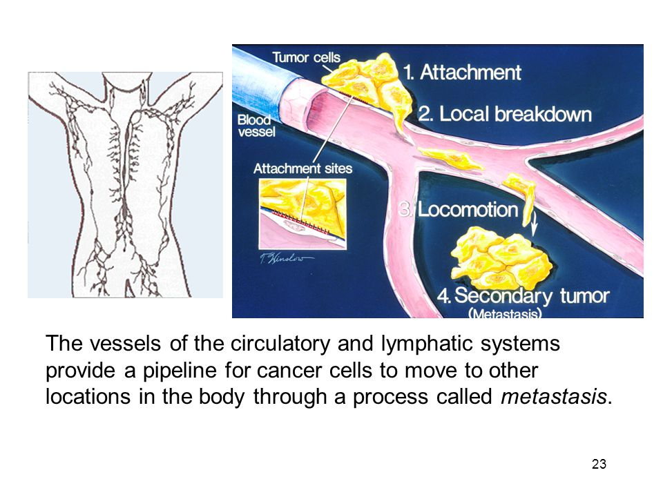 23 The vessels of the circulatory and lymphatic systems provide a pipeline for cancer cells to move to other locations in the body through a process c