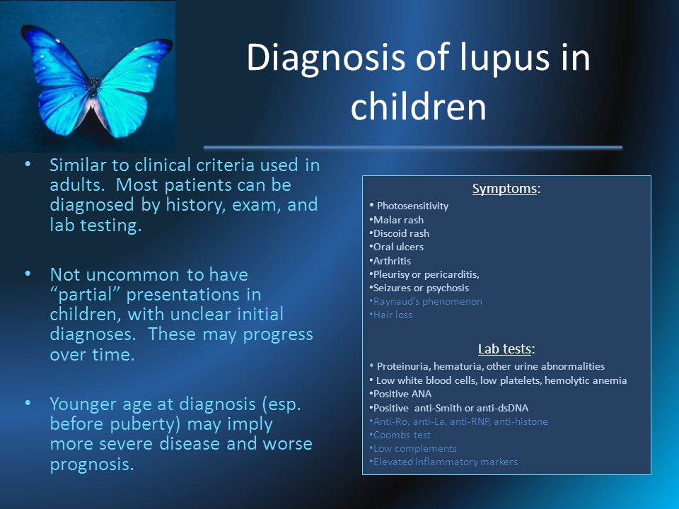 Diagnosis of lupus in children Similar to clinical criteria used in adults. Most patients can be diagnosed by history, exam, and lab testing. Not unco