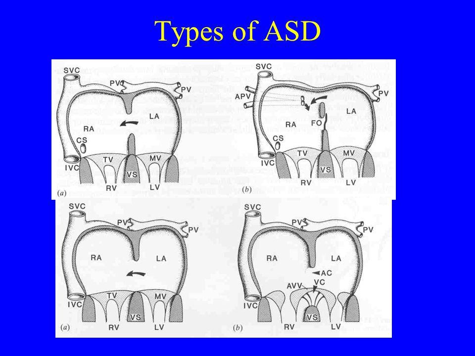Types of ASD