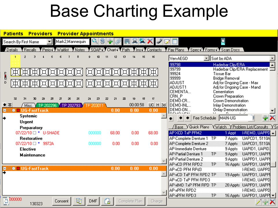 Base Charting Example