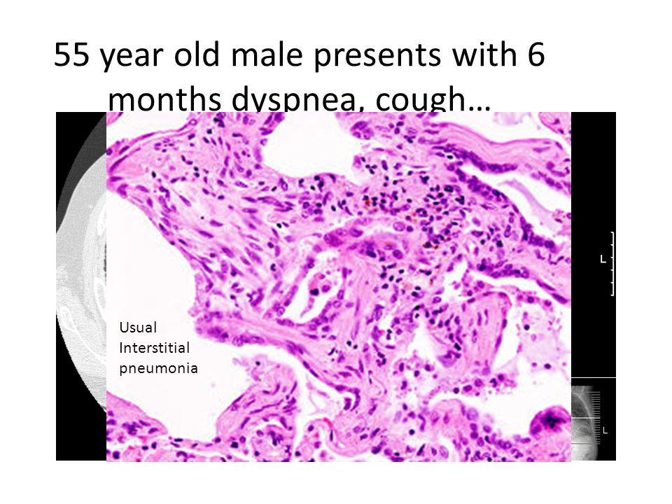 55 year old male presents with 6 months dyspnea, cough… Usual Interstitial pneumonia