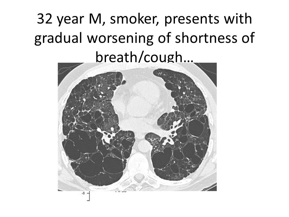 32 year M, smoker, presents with gradual worsening of shortness of breath/cough…